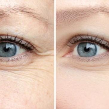Suivez ces étapes pour éviter les rides des yeux